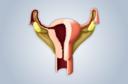 Como é o câncer de endométrio? Por que ele aparece? Quais são os fatores de risco? Como deve ser diagnosticado e tratado? O que fazer para evitá-lo?