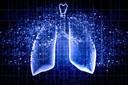 Pneumonite - informações básicas sobre esta condição