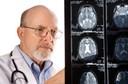 Síndrome Moyamoya: o que é? Quais as causas? E os sintomas? Como são o diagnóstico e o tratamento? Existe prevenção? Como evolui?